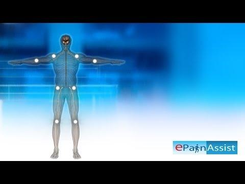 Fibromyalgia Explained! Learn About 11 Tender Points, Symptoms, Causes of Fibromyalgia