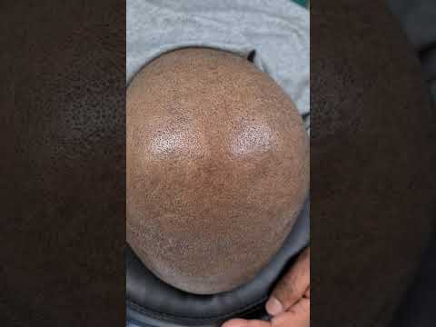 SMP Healed Hair Tattoo Scalp Micropigmentation by El Truchan @ Perfect Definition