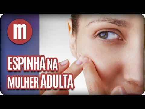 Saúde: Acne na Mulher Adulta - Mulheres (15/03/17)