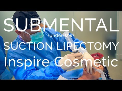 PREPPING FOR a SUBMENTAL  (under Jaw) SUCTION LIPECTOMY