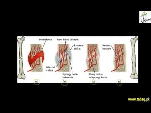 Repair of Broken Bones