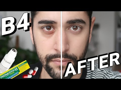 How To Get Rid Of Dark Circles, Bags + Wrinkles FAST PART 2  ✖ James Welsh