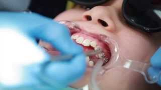 Braces: Putting Braces On Bonding Procedure - Aura Orthodontics