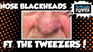 Tweezers on Blackheads and Sebaceous Filaments!