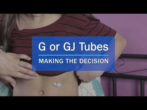 The G/GJ Tube Decision