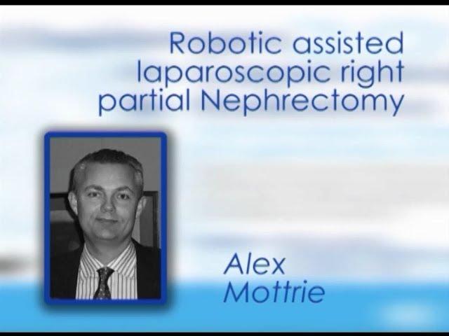 CILR 2012 - Alex Mottrie - Robotic-assisted laparoscopic right partial nephrectomy