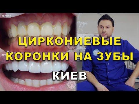 Циркониевые коронки на зубы Киев Украина (видео)