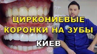Циркониевые коронки на зубы Киев Украина(, 2017-08-22T07:13:13.000Z)