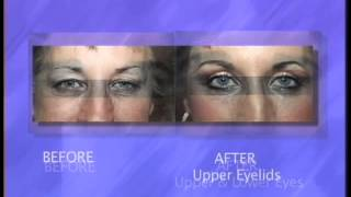What is Eyelid Surgery Thumbnail
