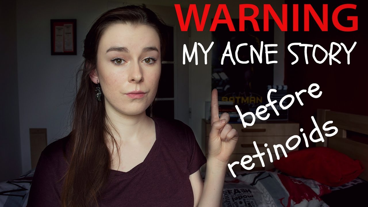 13df162c43 AKNÉ  My acne story  Before Isotretinoin (acnenormin) - YouTube