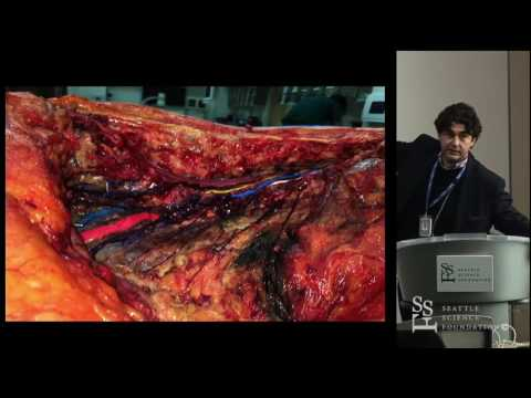 Anatomy of the Lumbar Plexus - Rod J. Oskouian, MD