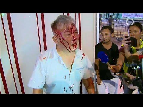 شاهد: كيف انهال محتجو هونغ كونغ بالضرب المبرح على مواطنين…  - نشر قبل 4 ساعة