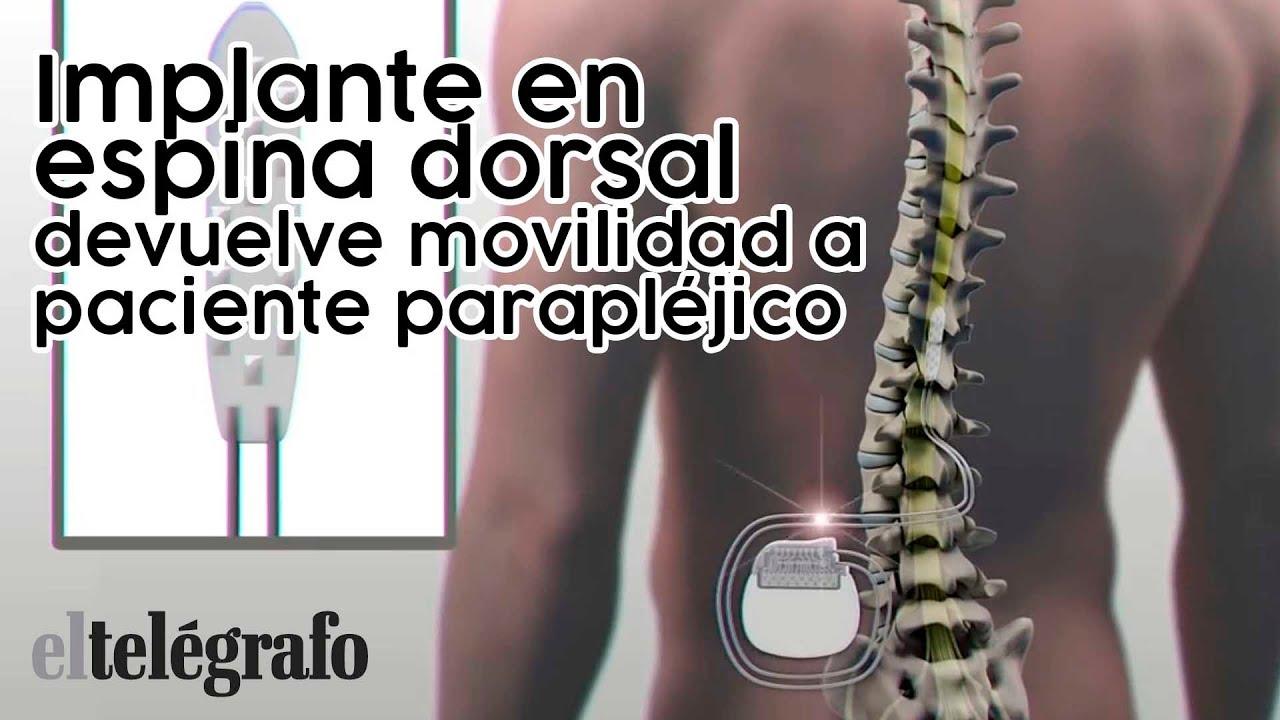 Implante En Espina Dorsal Devuelve Movilidad A Paciente