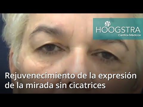 Rejuvenecimiento de la expresión de la mirada sin cicatrices (18194)