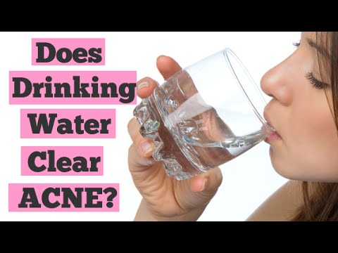Does Drinking Water Help Clear Up Acne?   Detox Water for Clear Skin   Acne Diet
