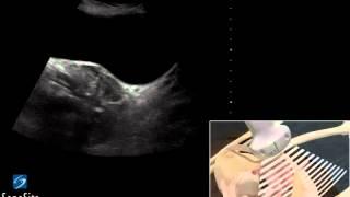 3D-пособие: Ультразвуковое исследование органов таза у женщин -- ультразвуковая система SonoSite