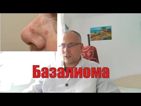 Базалиома - видео о базальноклеточном раке кожи