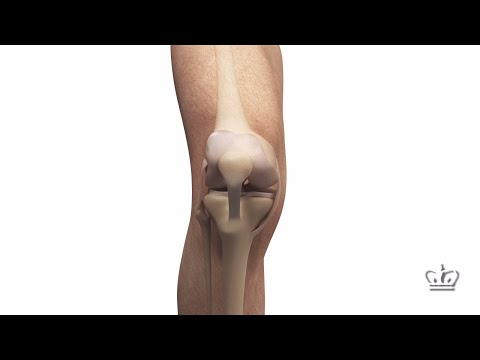 Knee Meniscus Regenerated with 3D-Printed Implant