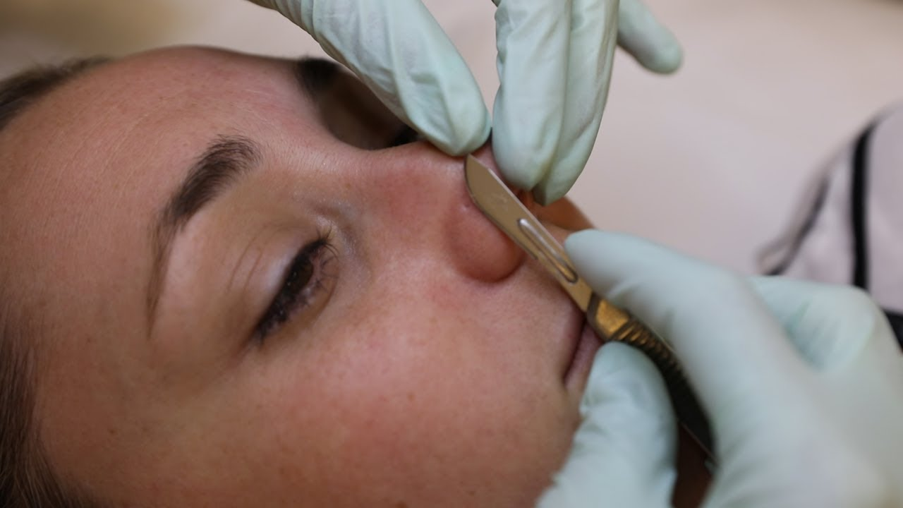 Dermaplaning Facial Resets Your Face With Scalpels And Acid Glam Lab Youtube