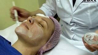 Глянцевая кожа после энзимного пилинга. Как правильно сделать дома?