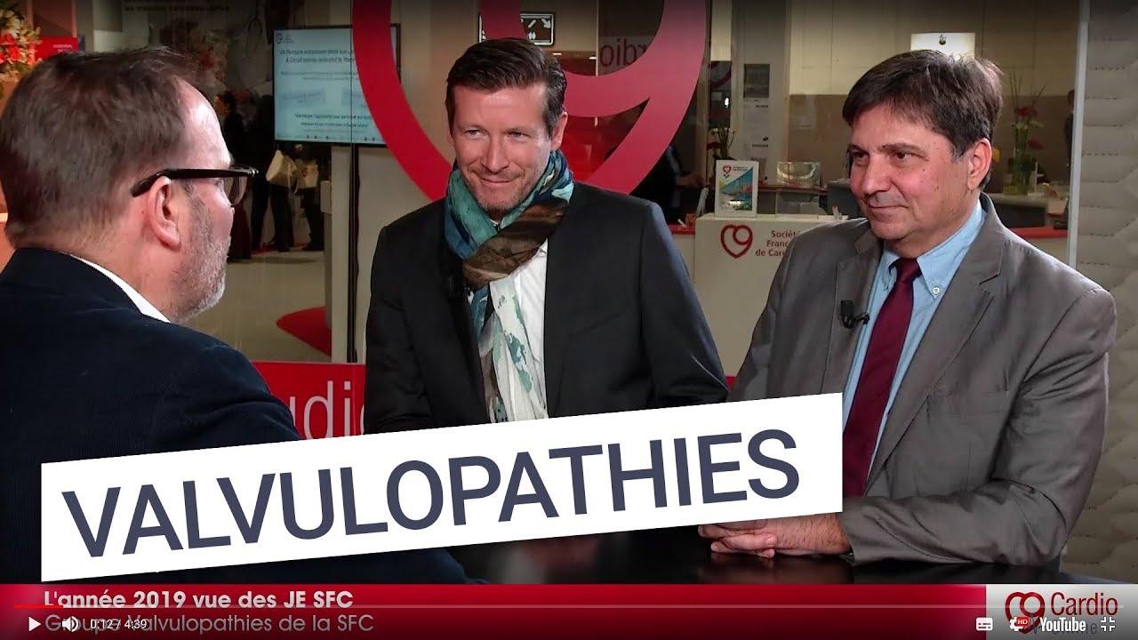 Valvulopathies | Société Française de Cardiologie