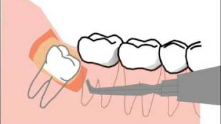 some special complications and risks of wisdom tooth extraction - a bloodless cartoon