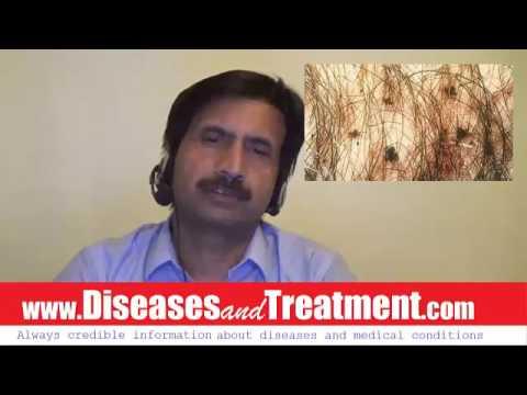 Pubic Lice Causes Diagnosis Symptoms Treatment Prognosis