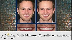 Cosmetic Dentists Of Austin Smile Makeover