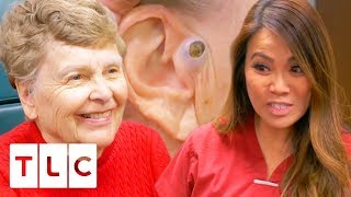 🔴 Dr. Lee Removes A Massive 55 Year Old Blackhead! | Dr. Pimple Popper