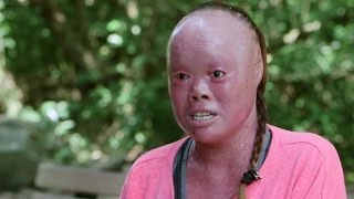 She uses rare skin condition to inspire others