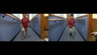 Before and After: Excess Plantarflexion - Toe Walking | DAFO Tami2