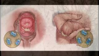 DANTE ARBOCCO- Qu son las Enfermedades Venereas Sifilis Herpes y Gonorrea
