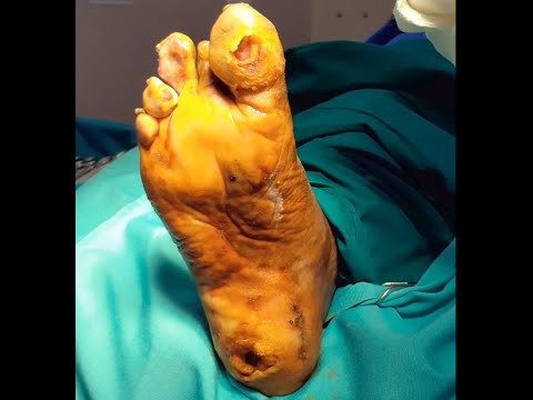 diabetic-foot -trophic-ulcer -excision debridement -callocity abscess callous-excision -neuropathy