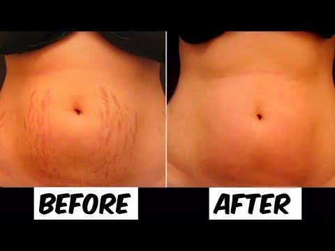 Do This For A Month and Remove Your Stretch Marks Completely