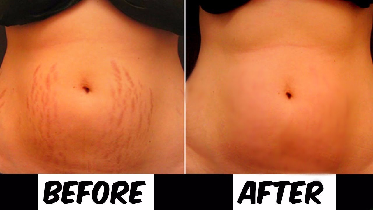 Do This For A Month To Remove Your Stretch Marks ...