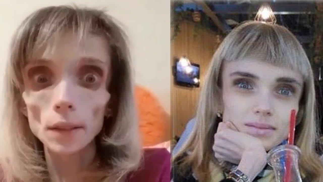 Кристина. Мария Кохно. Лечение нервной анорексии.