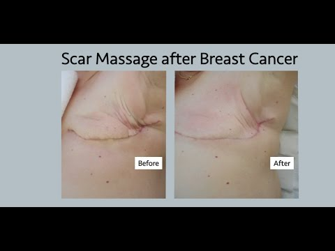 Opinion, you when breast scar tissue is cancerous confirm. happens