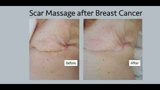 Scar Age After Cancer Mastectomy Lumpectomy And Flap