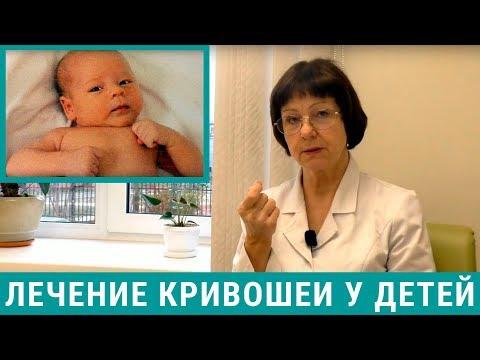Кривошея у новорожденных: лечение кривошеи у грудничков