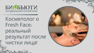 Косметолог о Fresh Face: Результат после Чистки Лица(Косметолог о Fresh Face: Результат после Чистки Лица Посмотреть всю продукцию компании Биобьюти можно здесь:..., 2013-11-26T14:08:24.000Z)