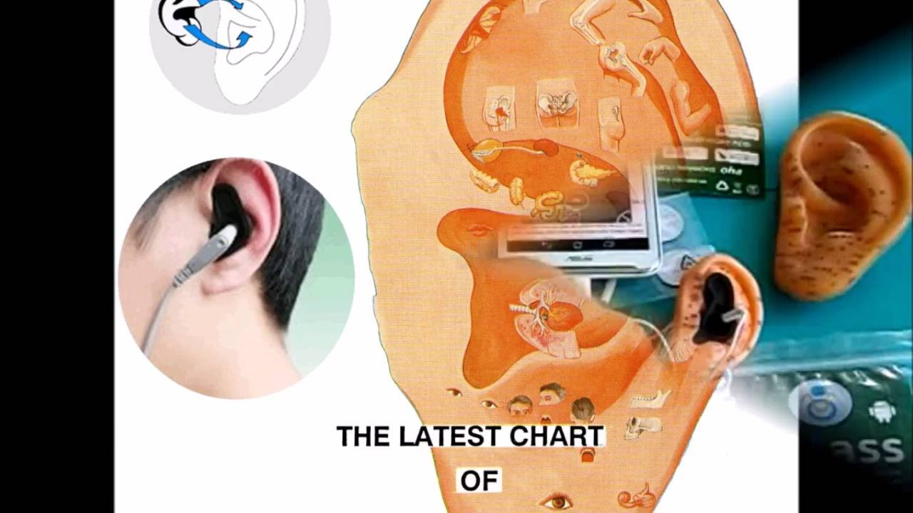 Ear acupuncture through your smartphone do it yourself ear ear acupuncture through your smartphone do it yourself ear acupuncture solutioingenieria Images