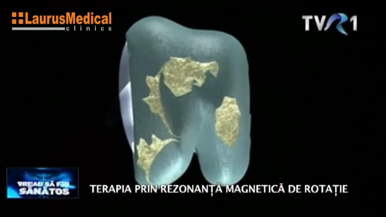 magnetul ajută în tratamentul artrozei