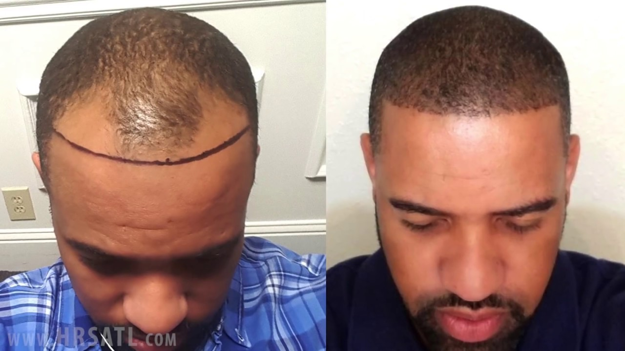 African American Hair Transplant - Before and After one year