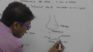 Joints, Disorders of Muscles & Skeletal System - Dr Rajeev - NEET & AIIMS Preparation Video lectures