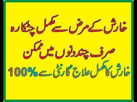 how to Cure Scabies At Home in Few Days || Scabies Treatment || Kharish ka Zabardast ilaj  in Urdu