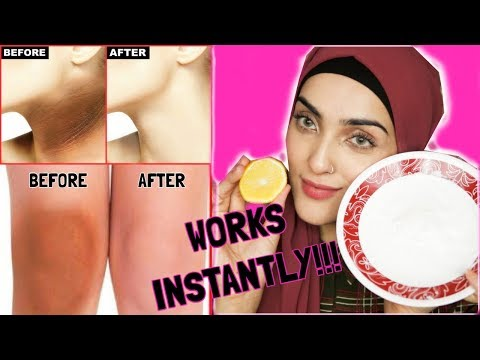 How To Lighten ANY BODY PART INSTANTLY   Dark Armpits, Dark Elbows and Knees DIY ~ Immy