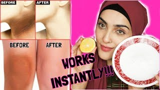 How To Lighten Dark Underarms, Elbows And Knees INSTANTLY ~ Immy