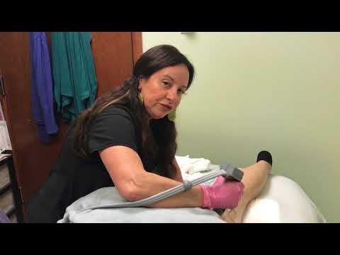 Thermage Treatment on Legs - Saltz Spa Vitoria