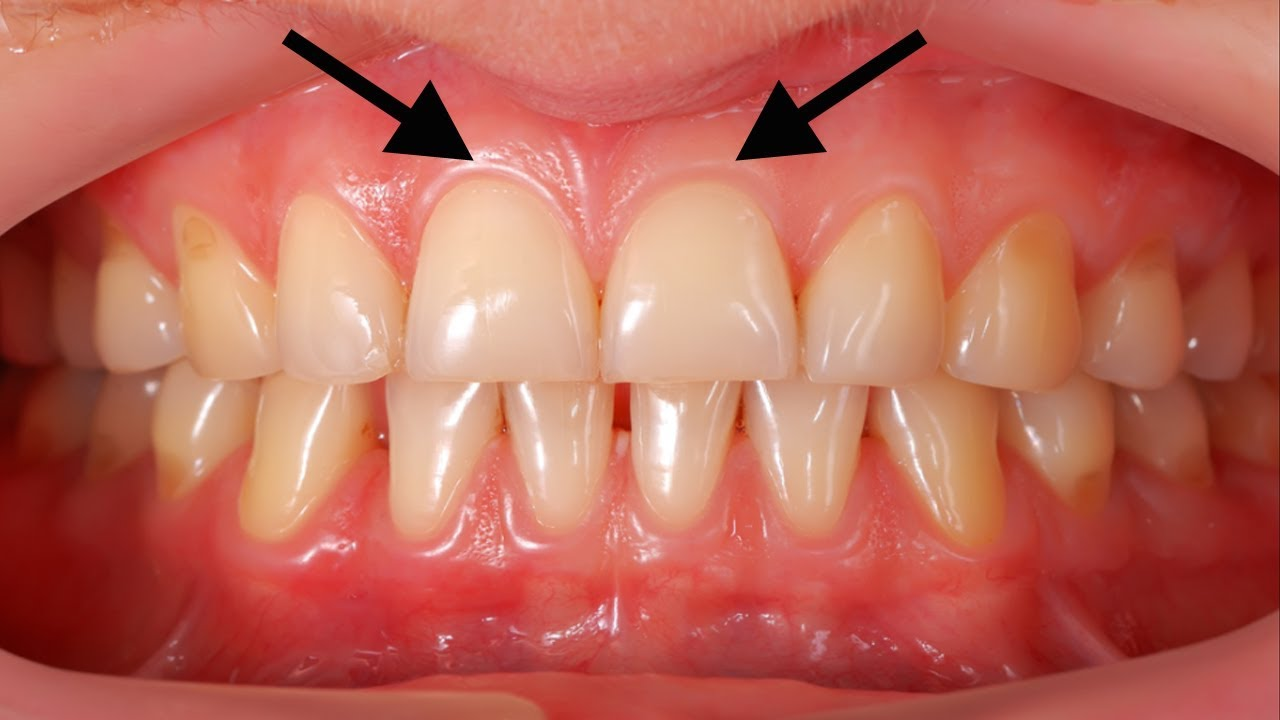 Can you regrow receding gums