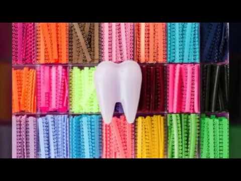 Braces colors 2016 - Y...